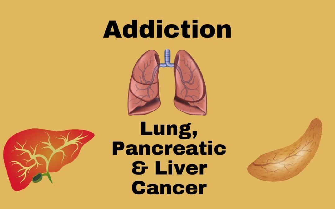 Addiction, Pancreatic and Lung Cancer